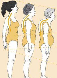 osteoporose_broze-botten_fig.05